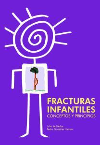 Fracturas infantiles: Conceptos y Principios. 2Ed