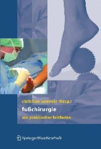 Fußchirurgie: Ein praktischer Leitfaden