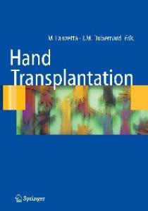Hand Transplantation