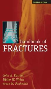Handbook of Fractures, 3rd Edition