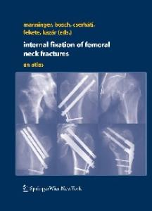 Internal fixation of femoral neck fractures An Atlas