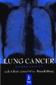 Lung Cancer  Second edition