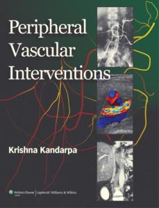 Peripheral Vascular Interventions